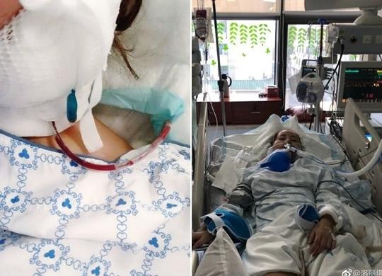 洛丽塔大哥整容削骨出事故 医生失手割到大动脉险些丧命